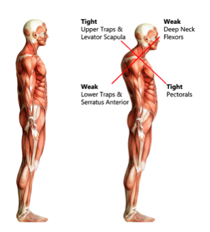Image result for muscle imbalance back